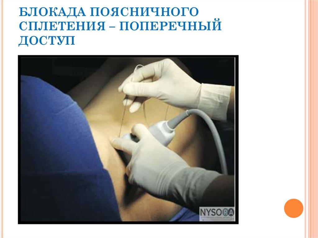 Аритмия коленных суставов (артрит коленного сустава: причины ...