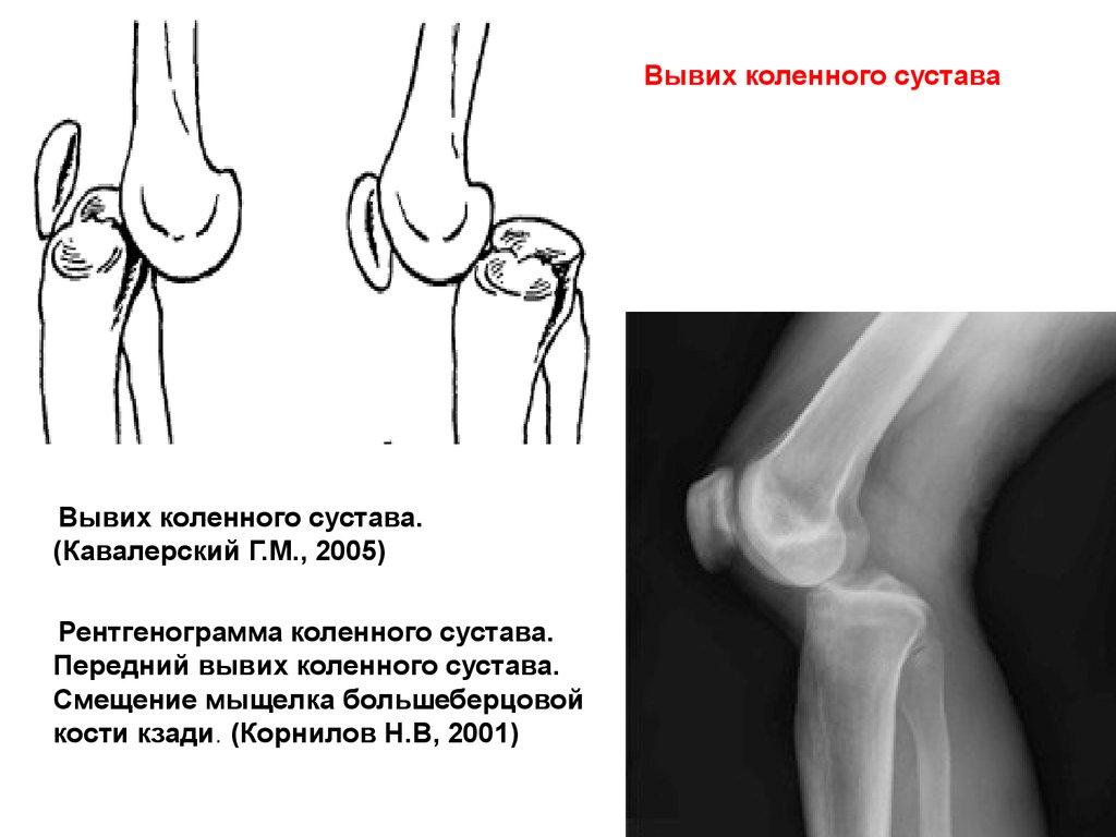 гипоплазия коленного сустава