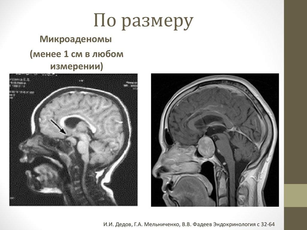 операция аденома гипофиза бурденко отзывы
