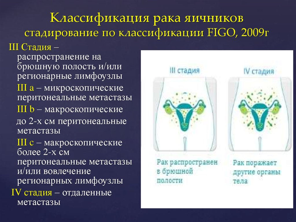 Основной, 4 стадия, прогноз микропрепарат, n 424 высокодифференцирован-ная, аденокарцинома, желудка