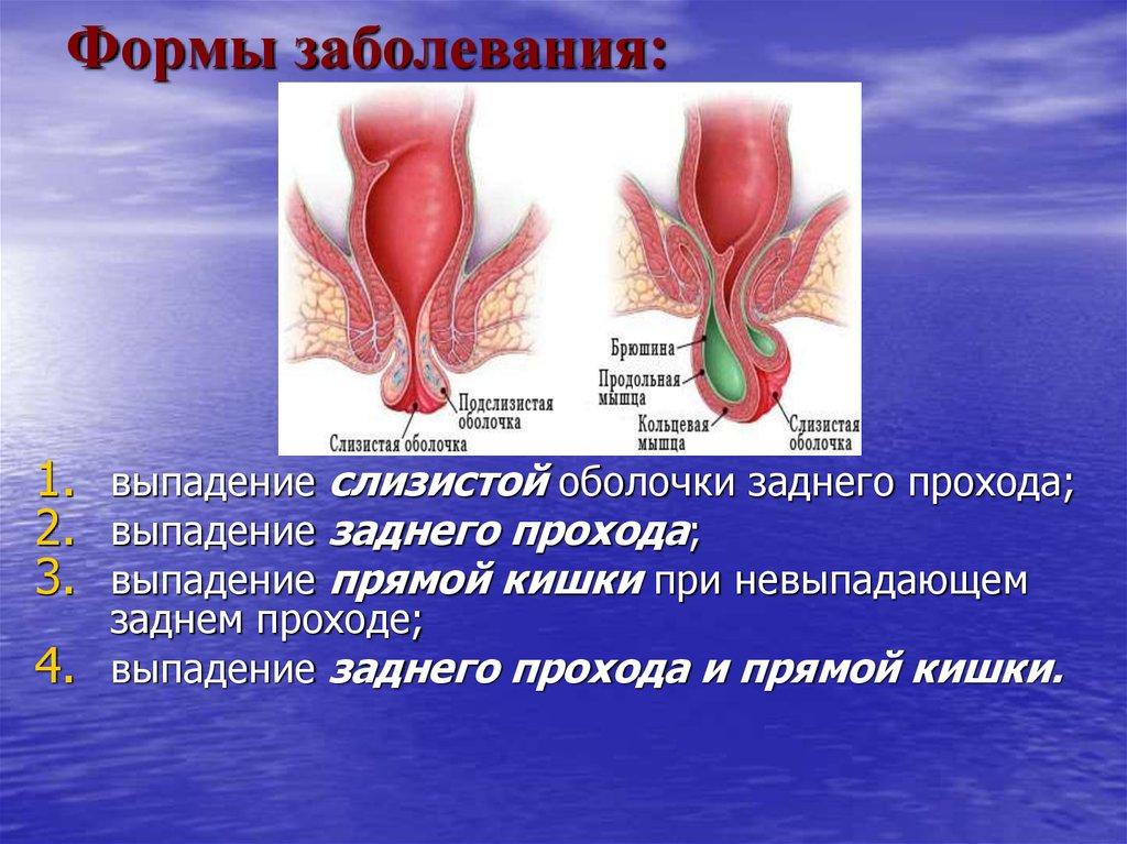 Воспаление заднего прохода лечение в домашних условиях