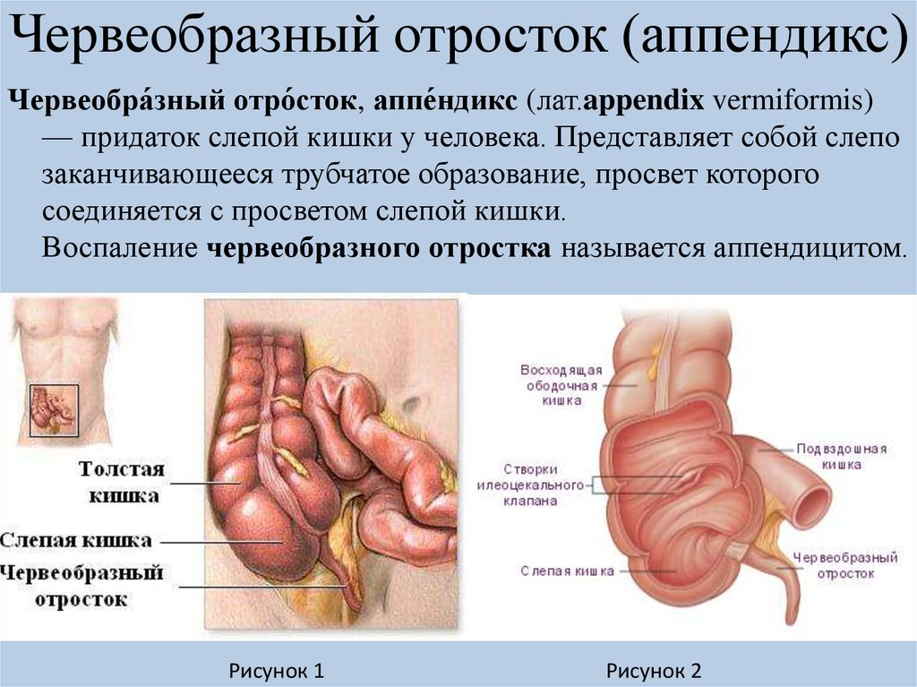 Vermiform appendix anatomy 7353181 - follow4more.info