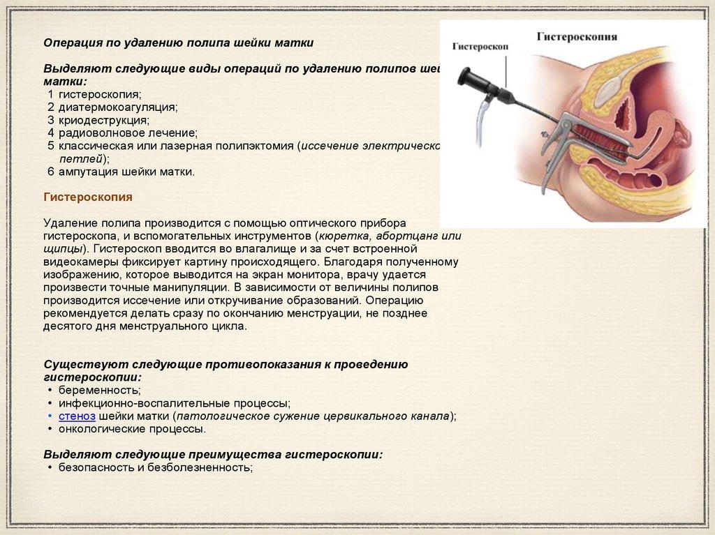 Как лечить воспаление шейки матки антибиотики 173