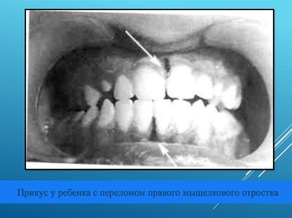 Лечение народными средствами плоскостопии