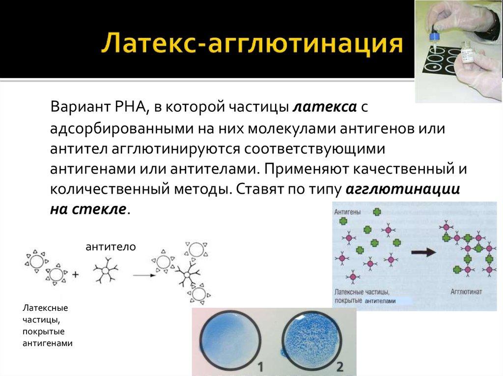 chastota-agglyutinatsii-spermatozoidov