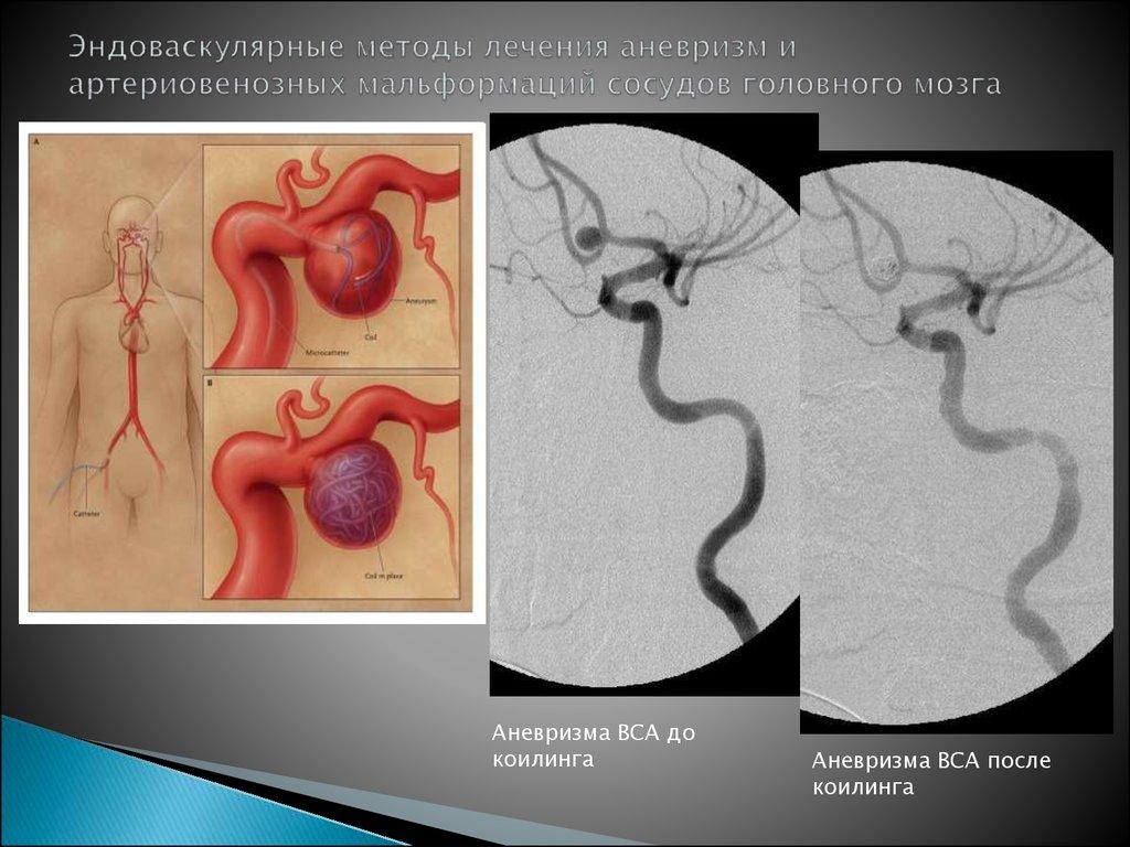 Аневризма в голове что это такое и как лечить