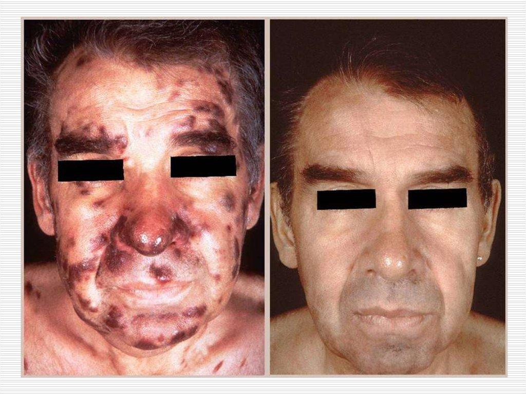 кожные проявления аллергии фото