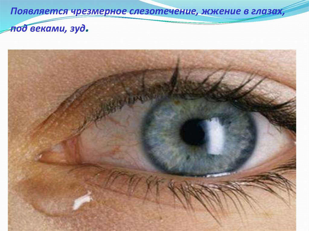 Слезиться один глаз чем лечить в домашних условиях 928