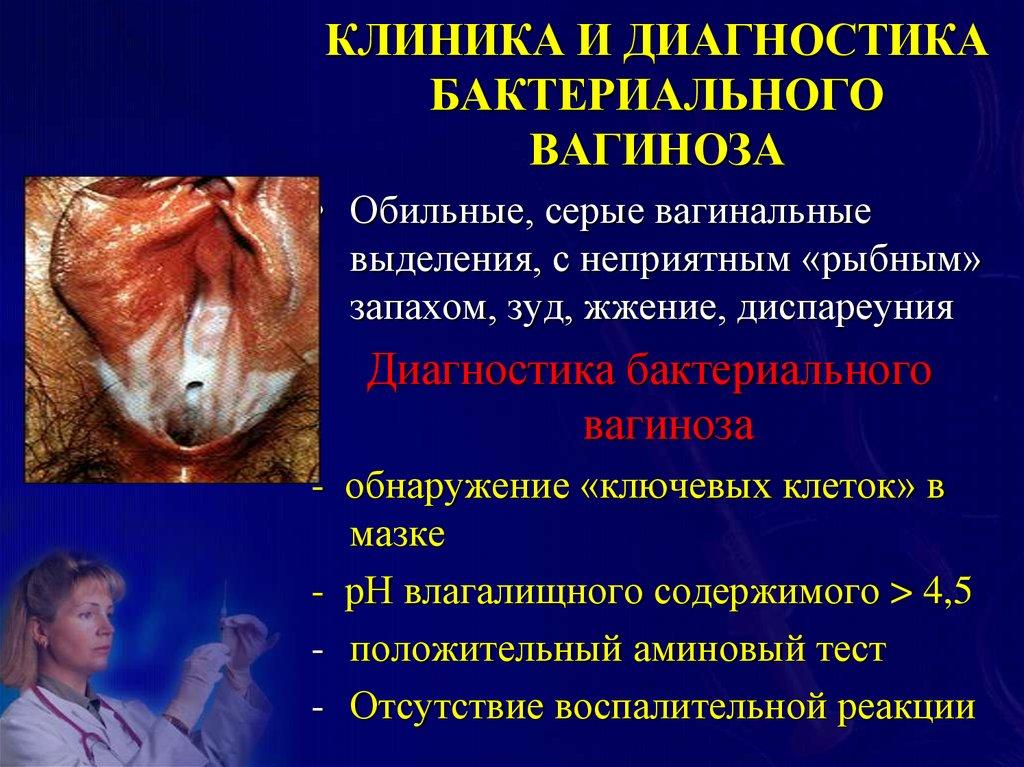 Специфические воспалительные заболевания женских половых органов - online presentation