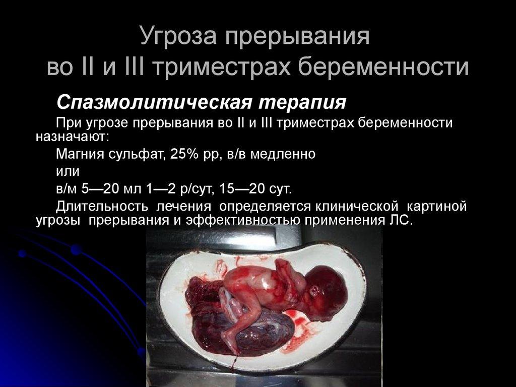 Угроза прерывания беременности. Препараты выбора. Клиническая фармакология токолитиков - презентация онлайн