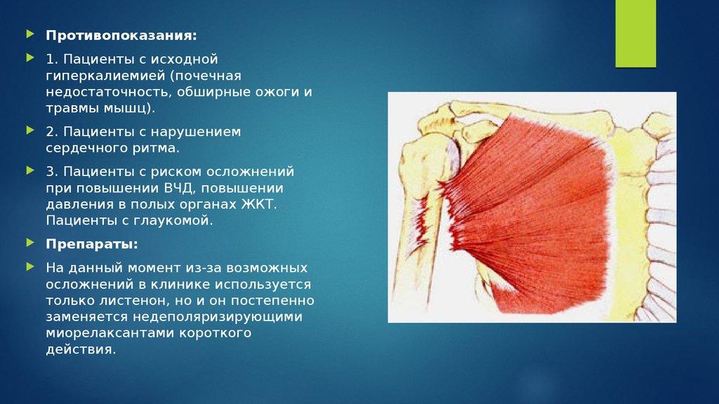 Миоглобинурия