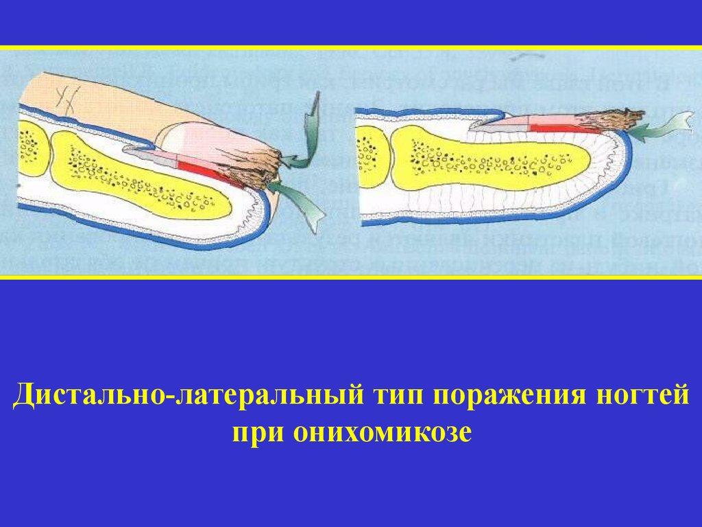 Сергеев заболевания ногтей 150