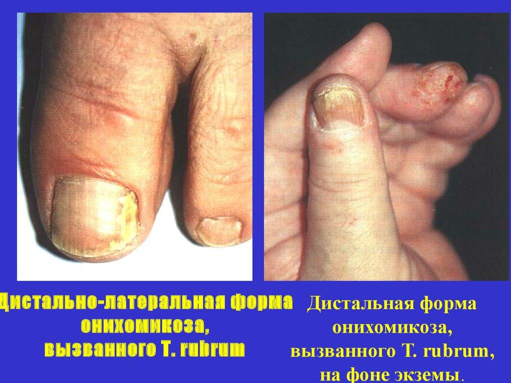 Сергеев заболевания ногтей 114