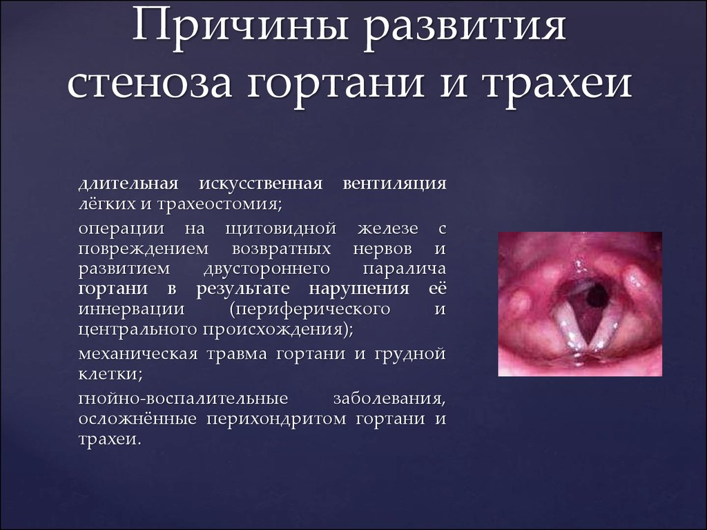 Стенозы гортани у детей лечение в домашних условиях