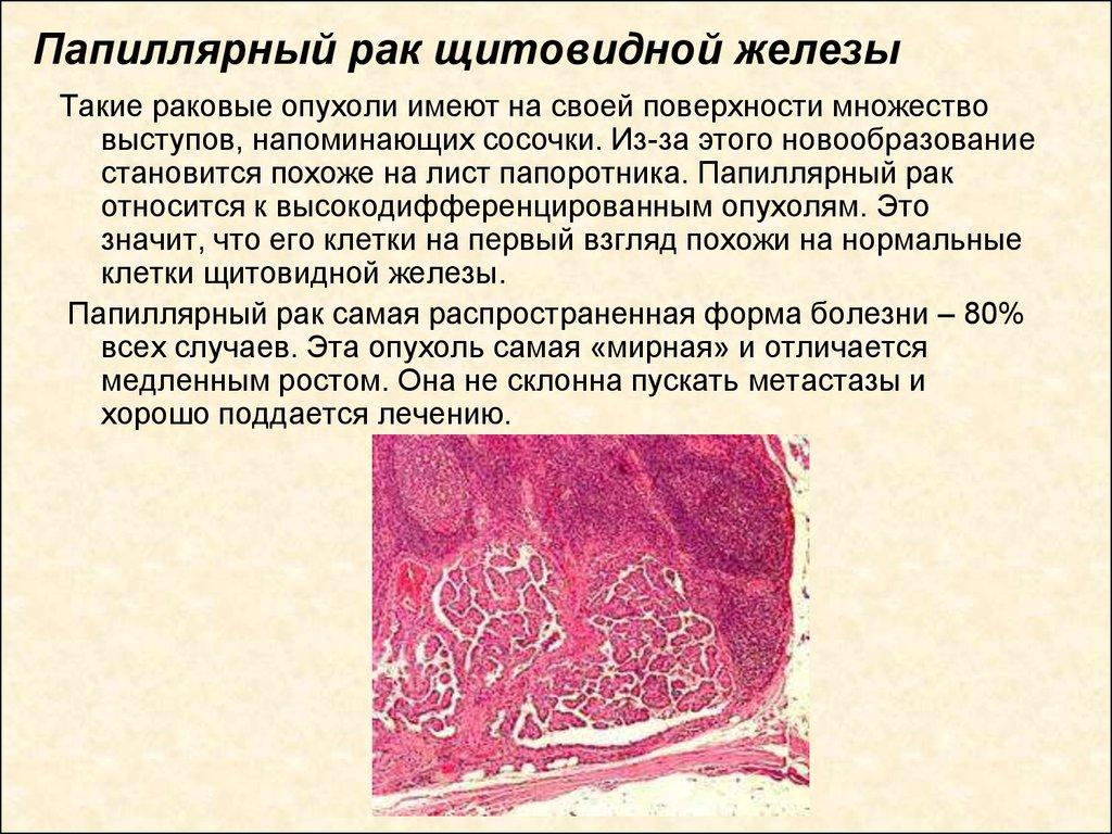 Рак щитовидной железы что это такое как лечить