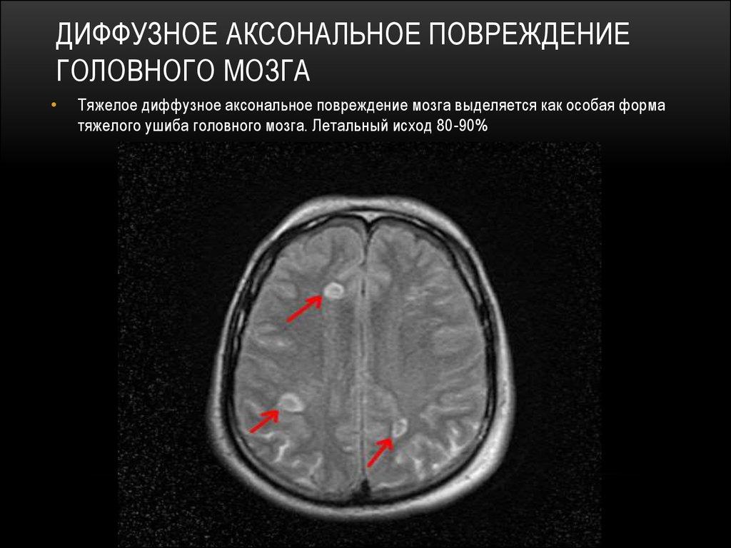 Аксональное повреждение мозга