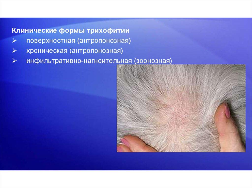 история болезни микроспория волосистой части головы медицина