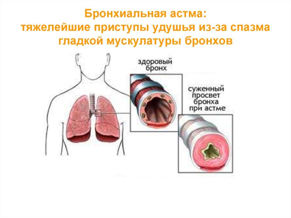 аллергия и непереносимость