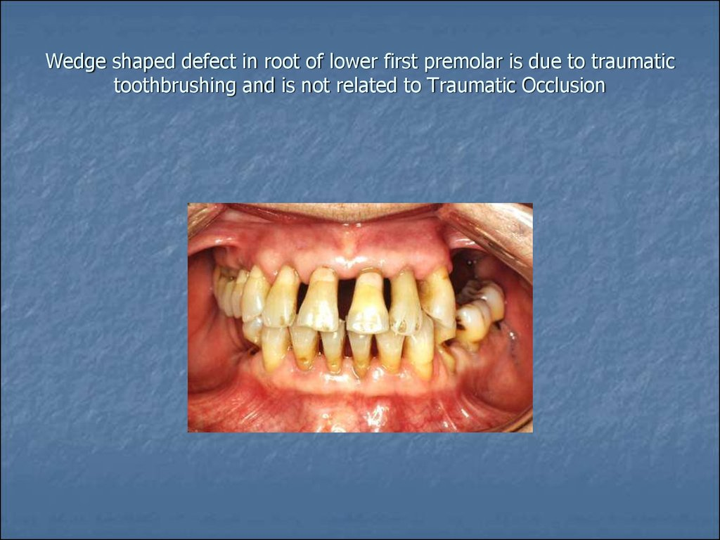 Wedge shaped defect in root of lower first premolar is due to traumatic toothbrushing and is not related to Traumatic Occlusion