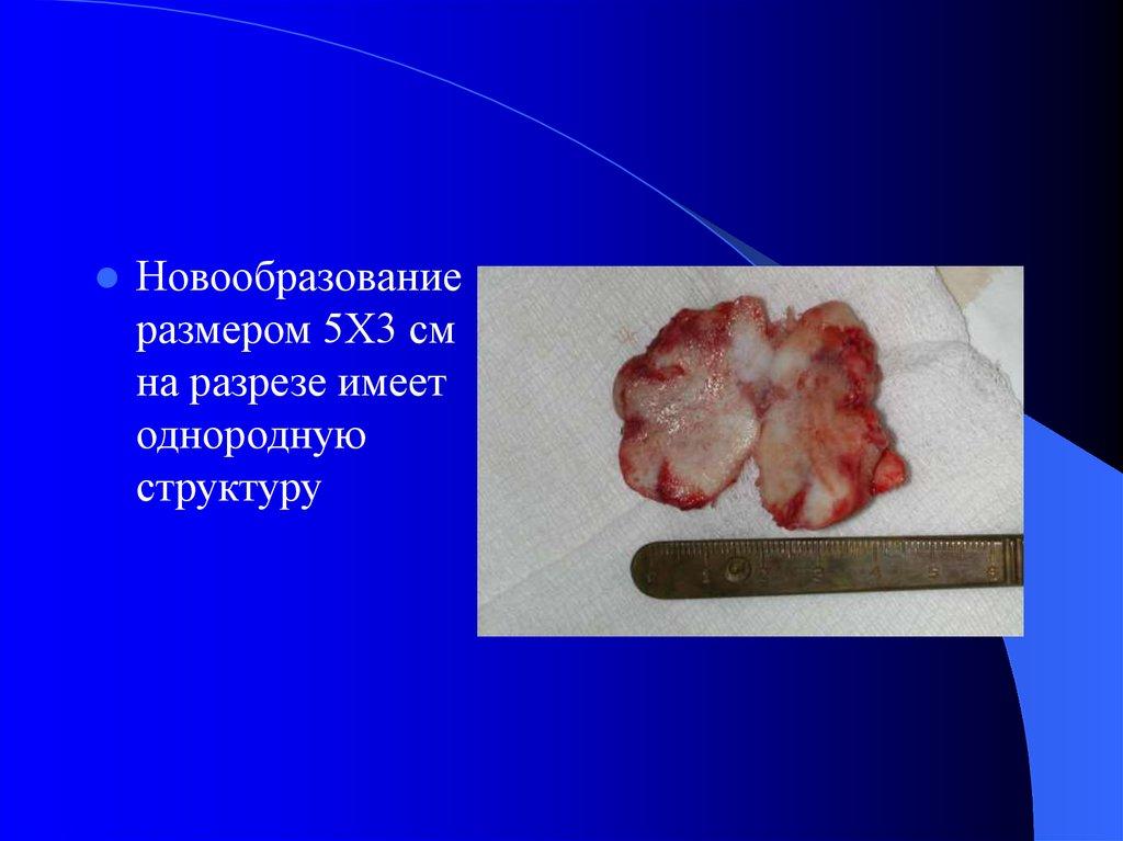 инфекционные гранулемы фото