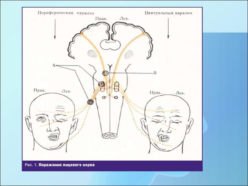 Лечение лицевого нерва в домашних условиях 681