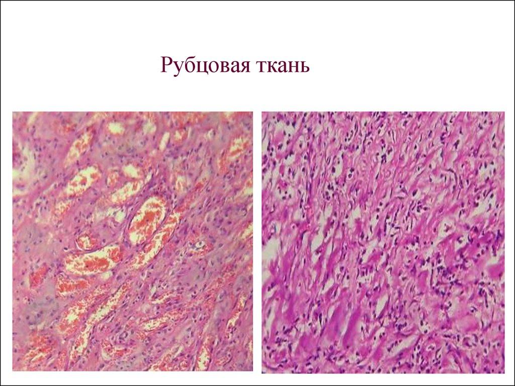 Патология век блефариты ячмень причины течение болезни лечение