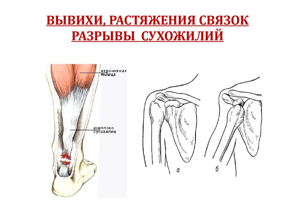вывих подколенного сустава