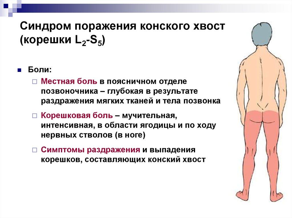 корешковые боли в пояснице
