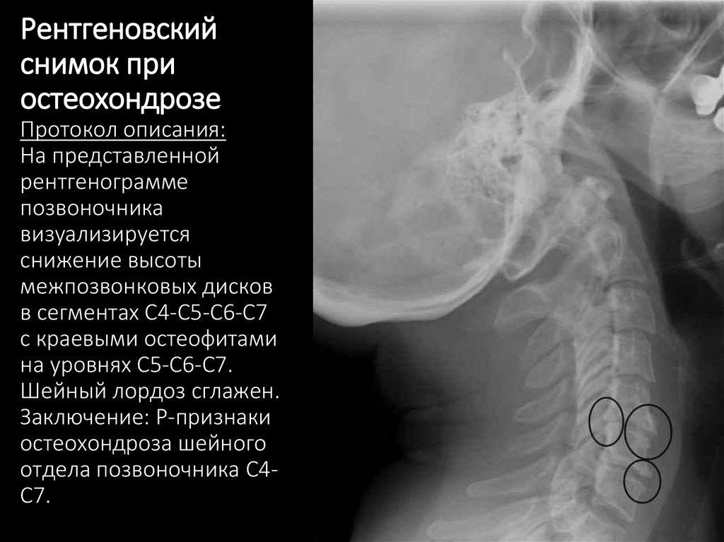 Рентгеновский снимок при остеохондрозе описание