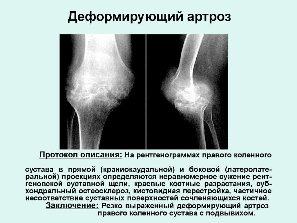 рентген суставов подготовка