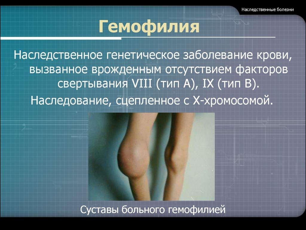 генетическое заболевание суставов у детей