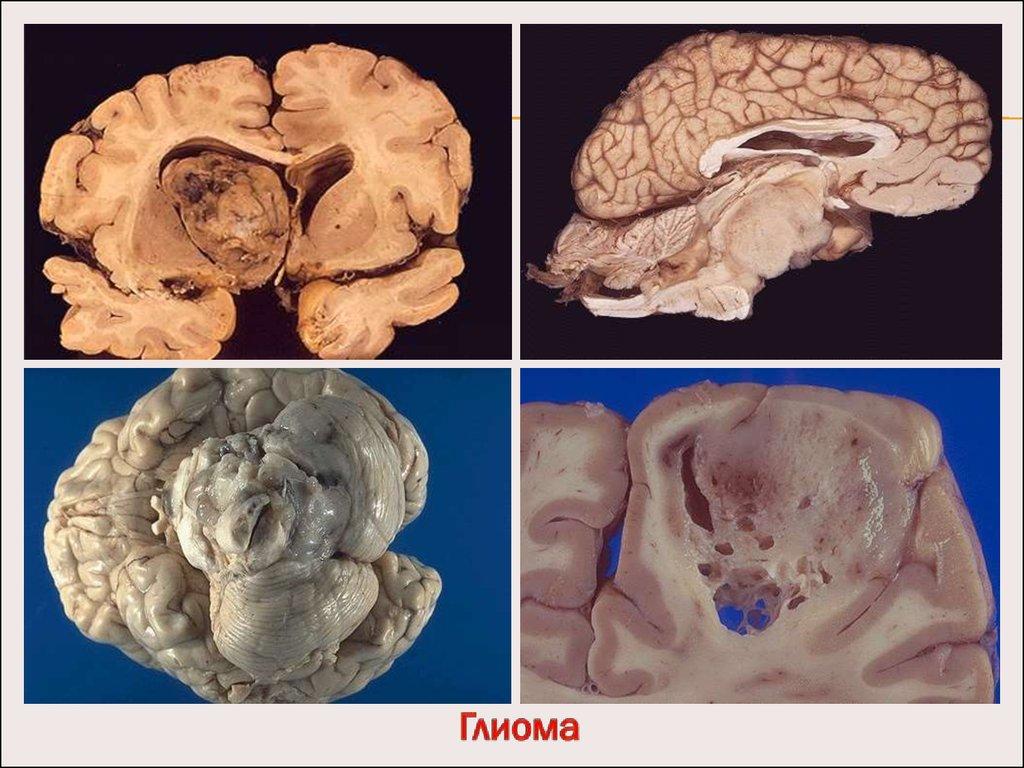 доброкачественные опухоли желудка в лучевой диагностике реферат