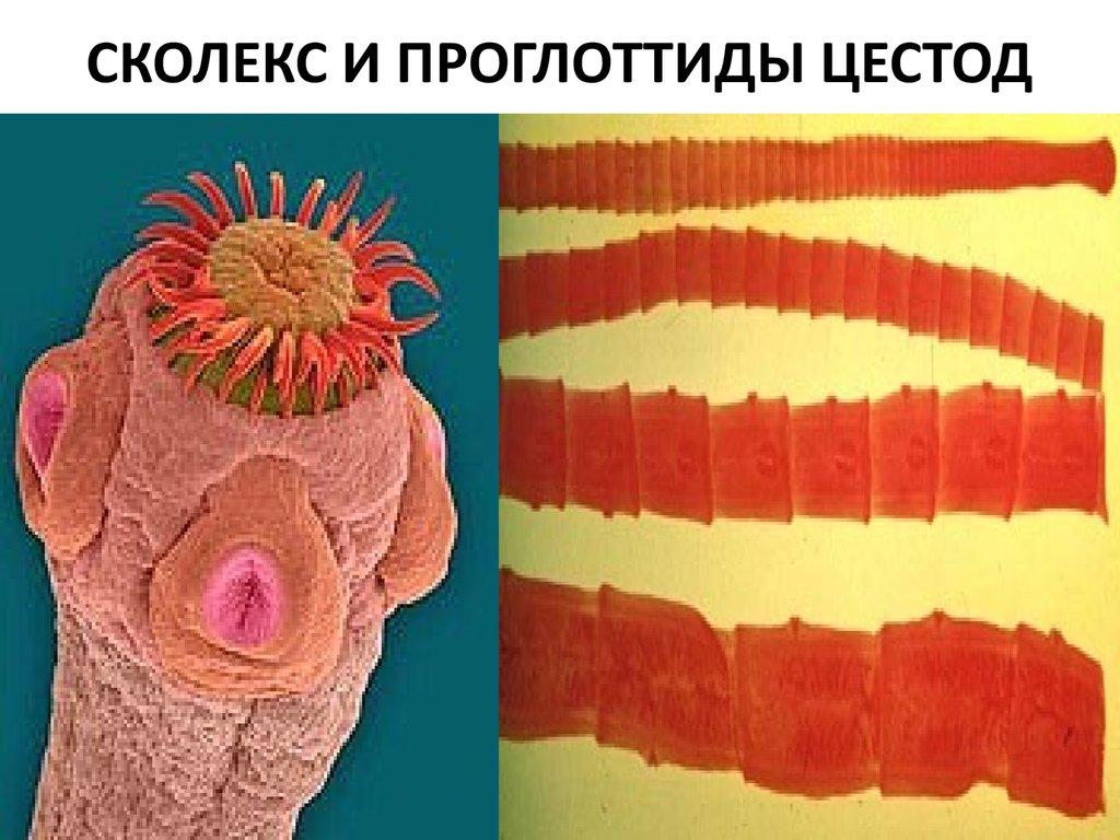 окончательный хозяин паразита человек