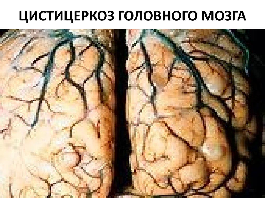 черви паразиты человека таблица