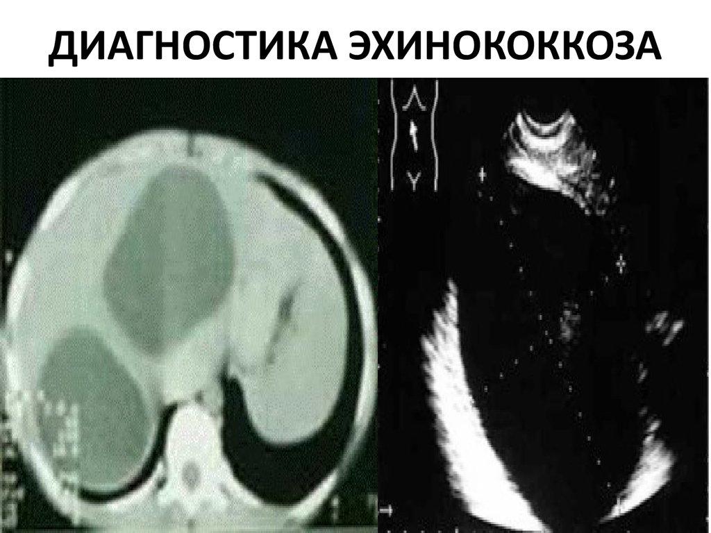 плоские черви паразиты человека лечение