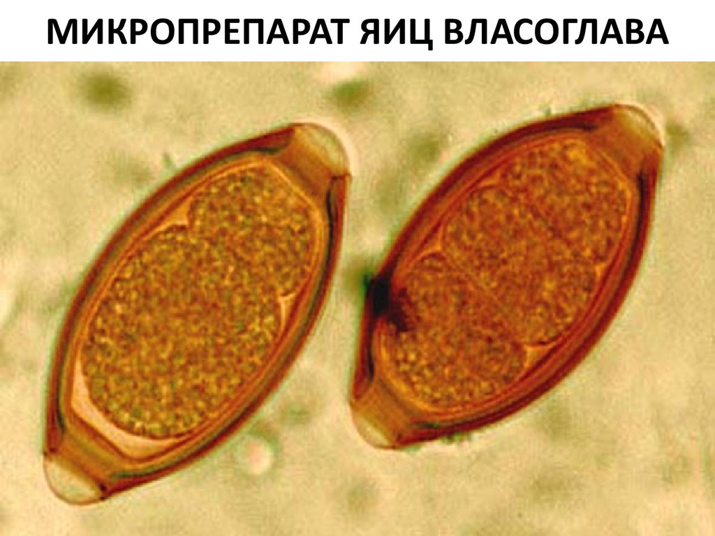 черви паразиты человека фото