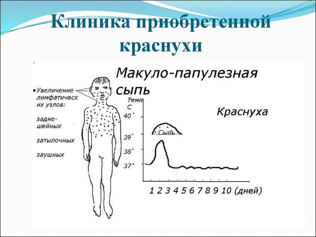 Менингококковая инфекция - симптомы, лечение 59