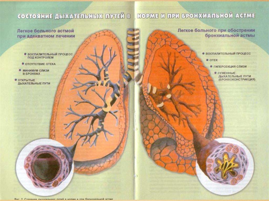 Как в домашних условиях лечить бронхиальную астму у