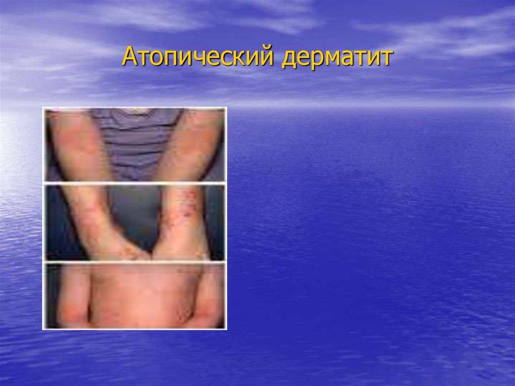 Народная медицина нейродермита