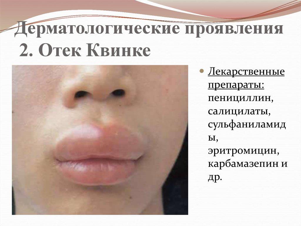 лекарственная аллергия
