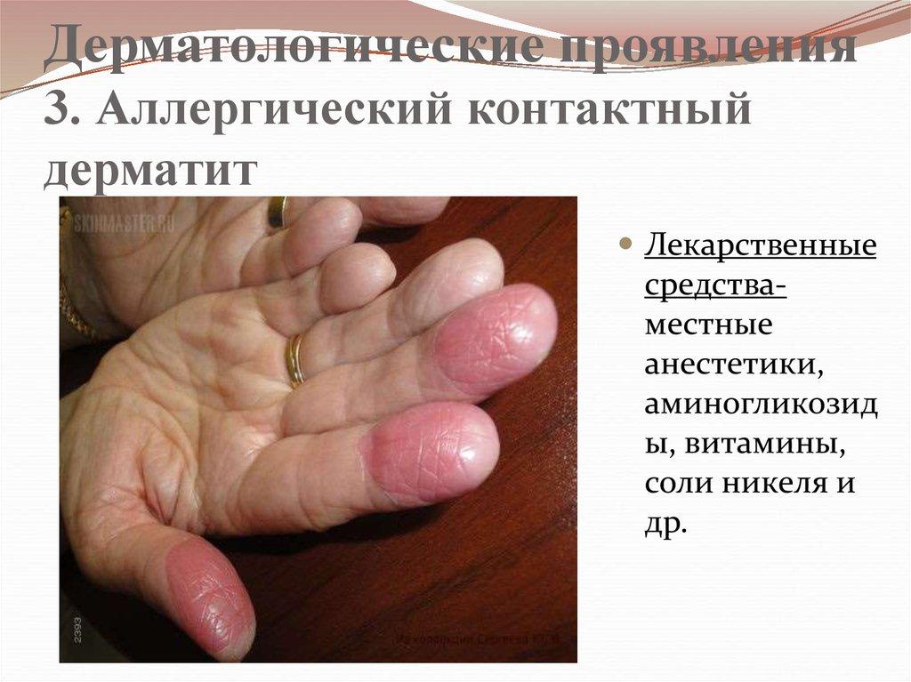 лекарственная аллергия формы проявления