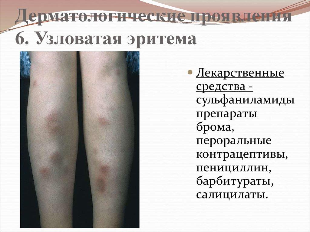 инфекционная эритема симптомы и фото