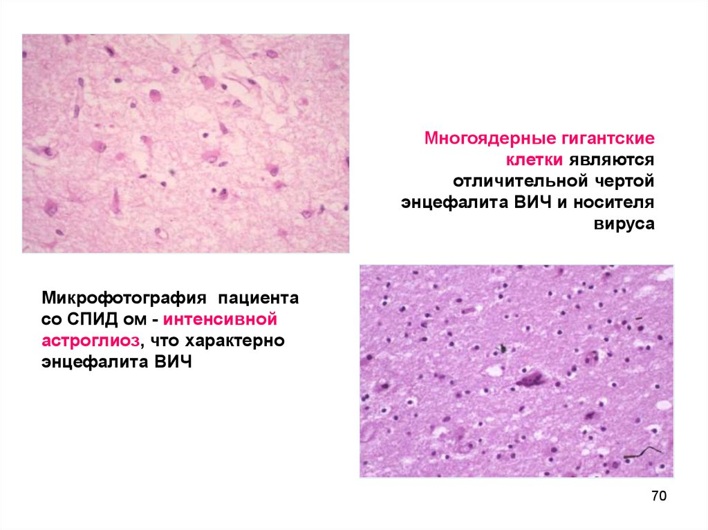 Пириметамин