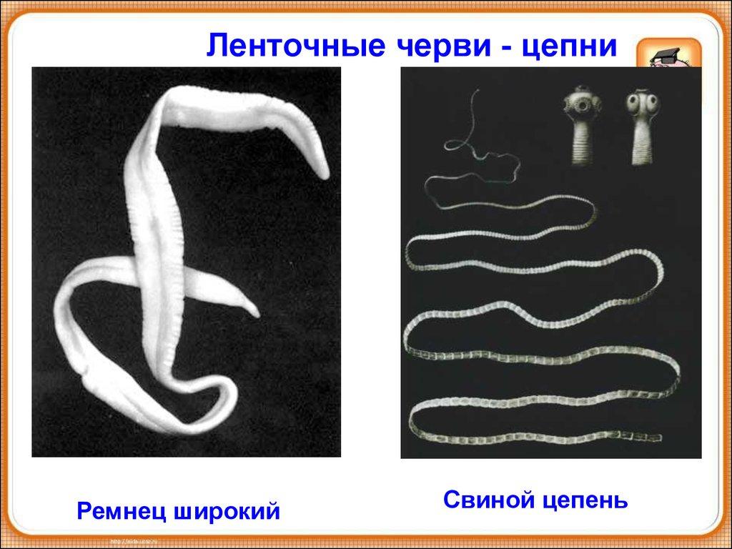 плоские черви паразиты человека и их разновидности