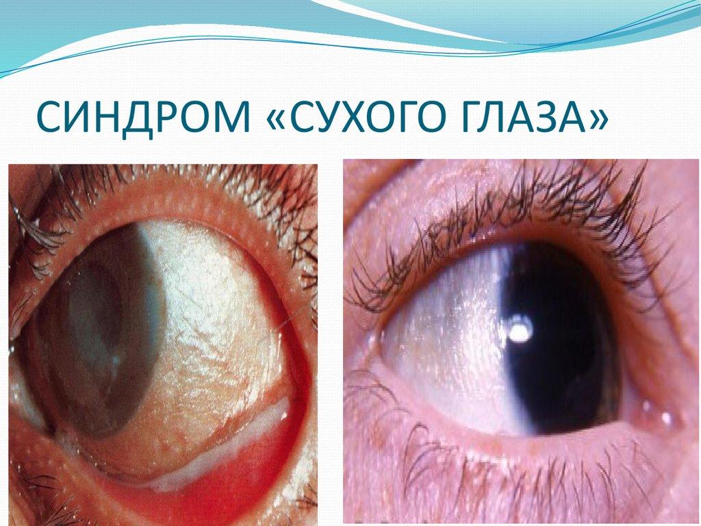 Сухость в глазах как лечить в домашних условиях