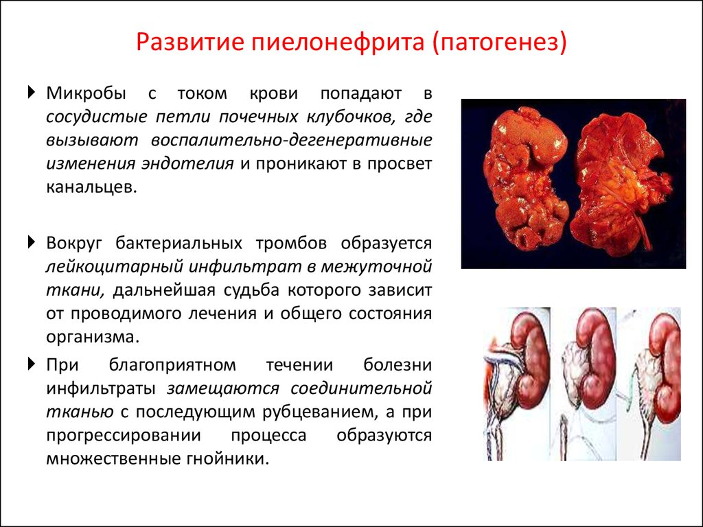 Пиелонефрит у ребенка с диабетом