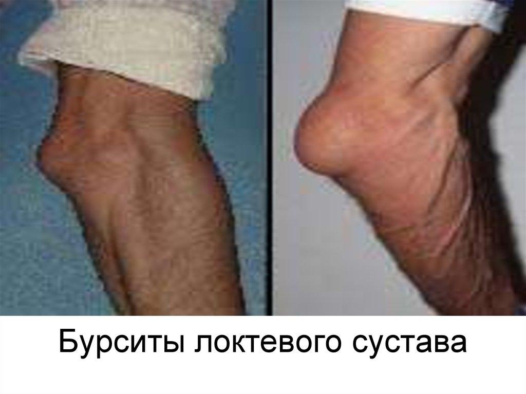Клиника Артрита