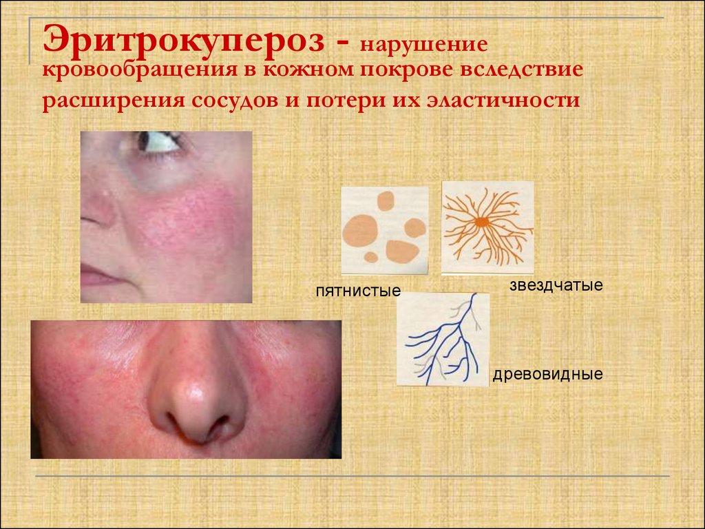 Нарушения микроциркуляции в коже