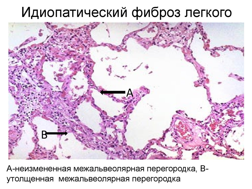 бронхиальная астма и фиброз легкого