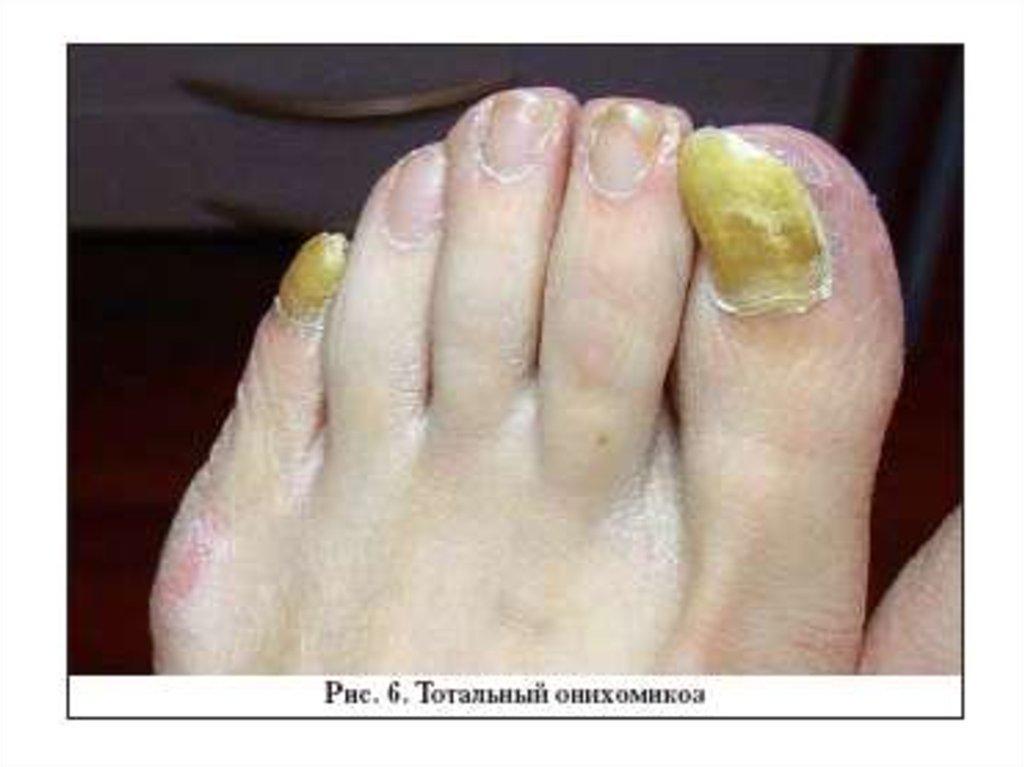 Фото запущенного грибка на ногтях ног